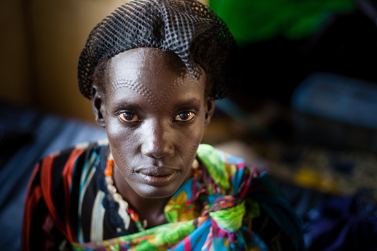 Young woman in the Médecins Sans Frontières clinic in Gogrial, South Sudan